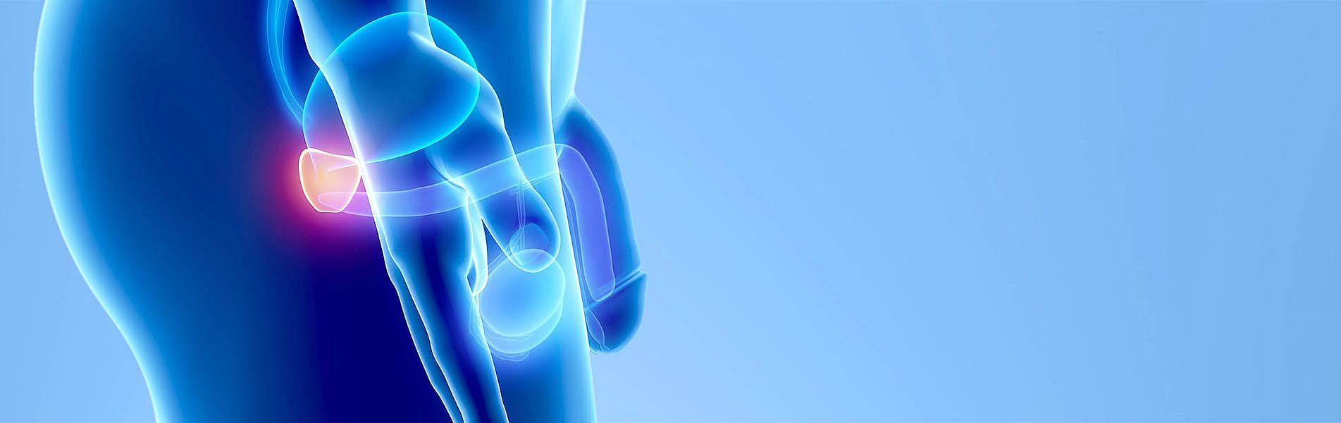 prostatakarzinom ursache